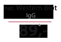 Cena testu - Borelioza - WB IgG