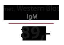 Cena testu - Borelioza - WB IgM